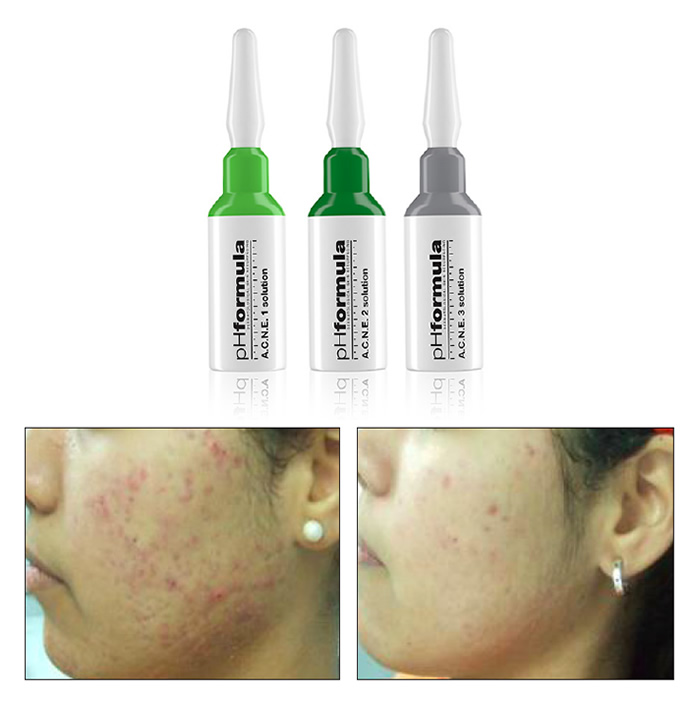 treatment ACNE