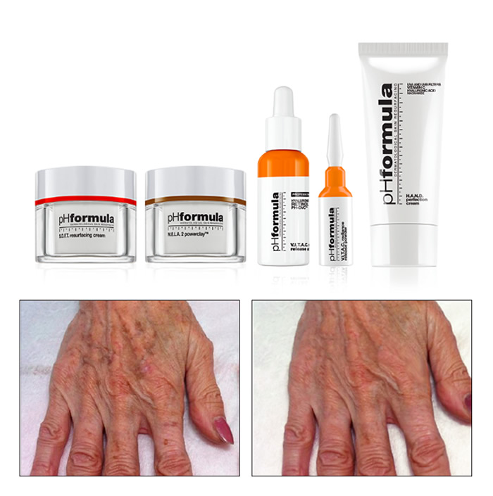 treatment HANDS